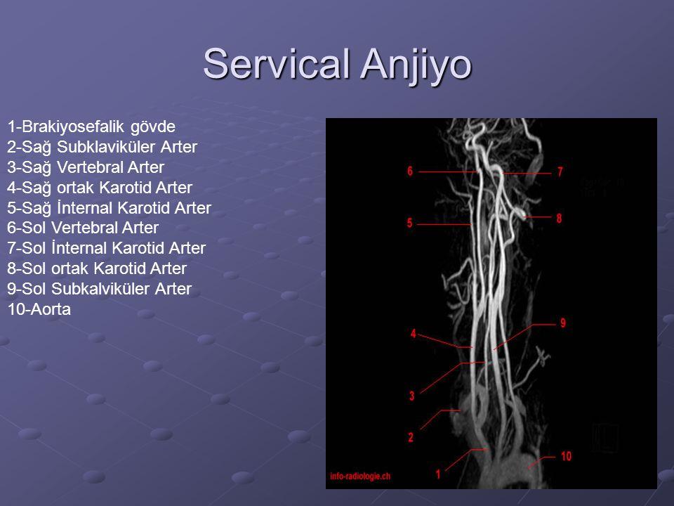 Servical Anjiyo 1-Brakiyosefalik gövde 2-Sağ Subklaviküler Arter