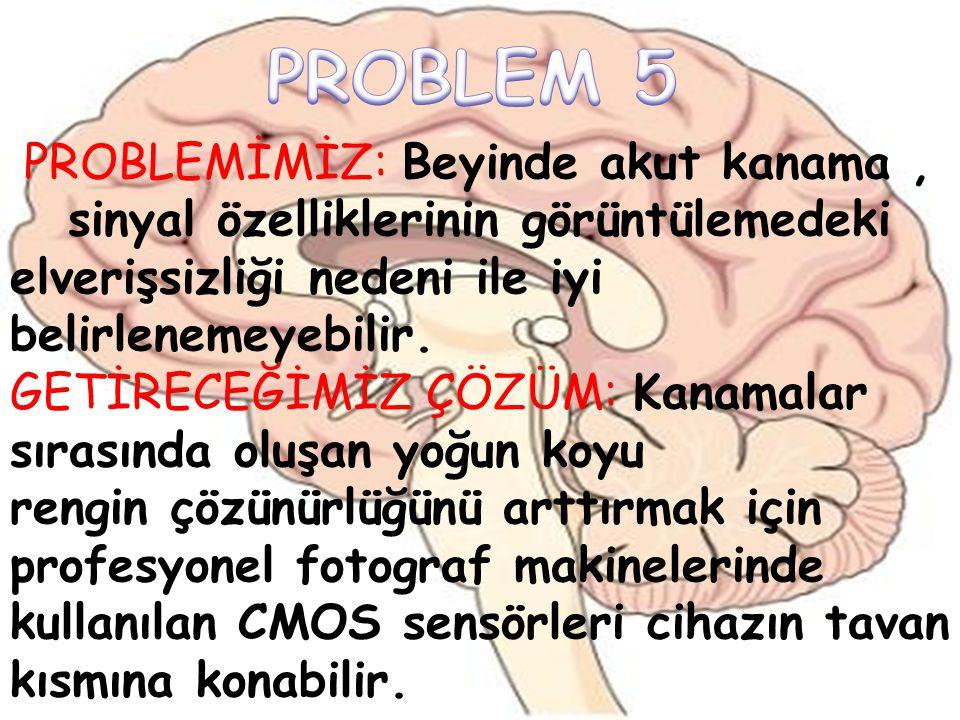 PROBLEM 5 PROBLEMİMİZ: Beyinde akut kanama , sinyal özelliklerinin görüntülemedeki. elverişsizliği nedeni ile iyi belirlenemeyebilir.