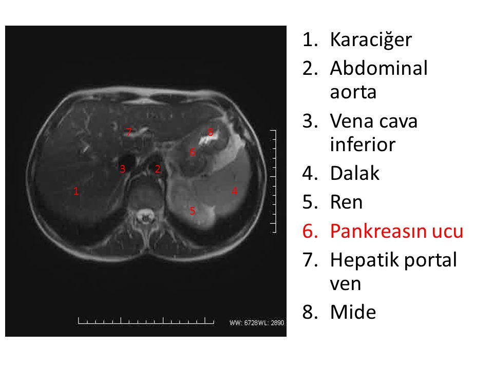 Karaciğer Abdominal aorta Vena cava inferior Dalak Ren Pankreasın ucu