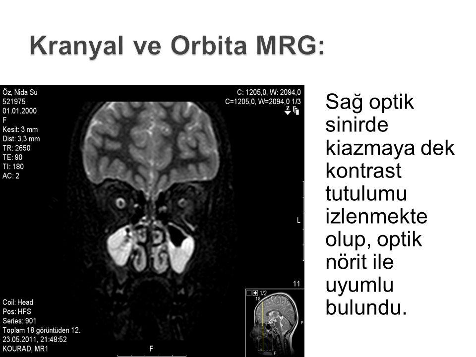 Kranyal ve Orbita MRG: Sağ optik sinirde kiazmaya dek kontrast tutulumu izlenmekte olup, optik nörit ile uyumlu bulundu.