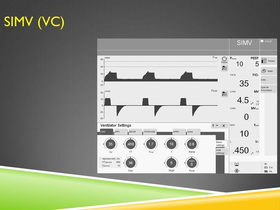 SIMV (VC)