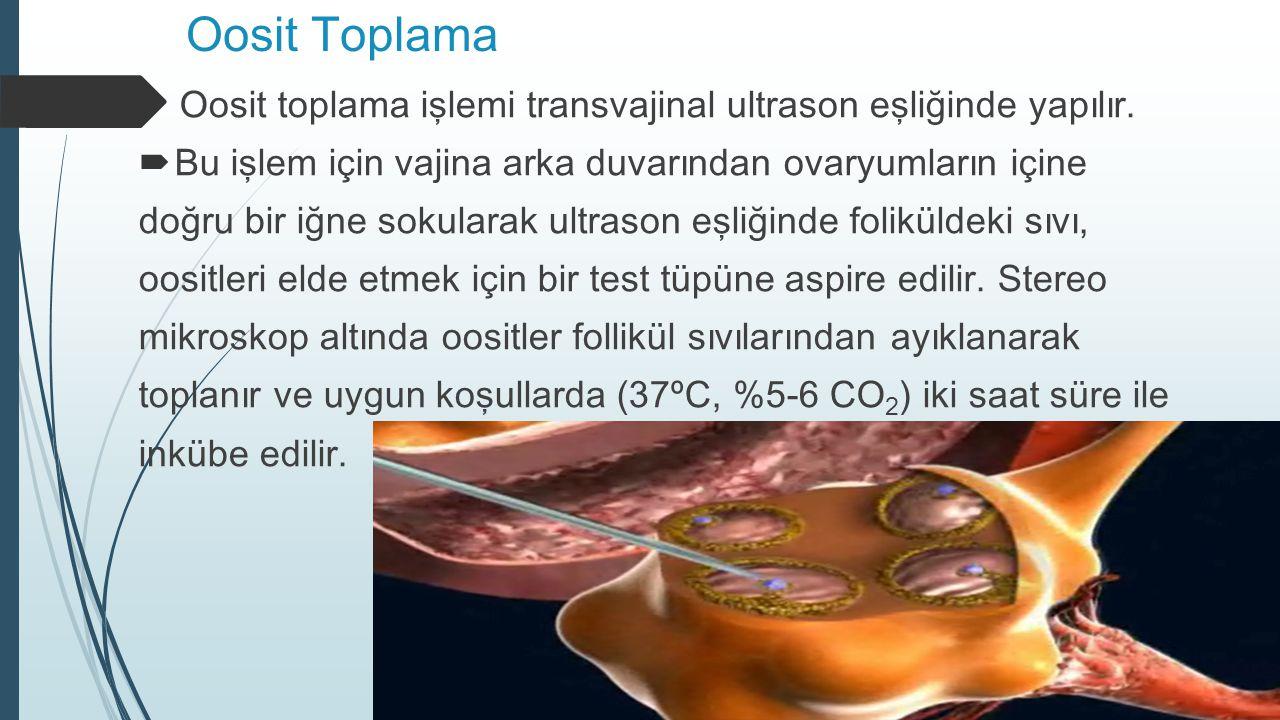 Oosit Toplama Oosit toplama işlemi transvajinal ultrason eşliğinde yapılır. Bu işlem için vajina arka duvarından ovaryumların içine.
