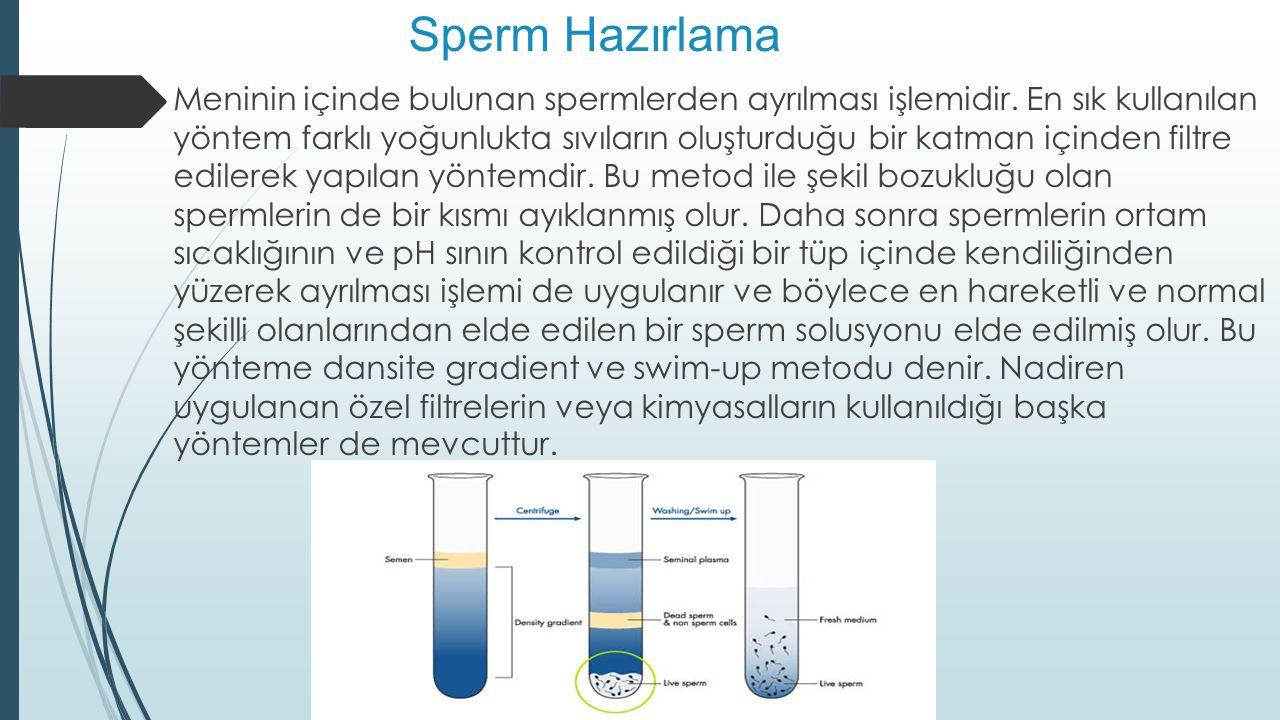 Sperm Hazırlama