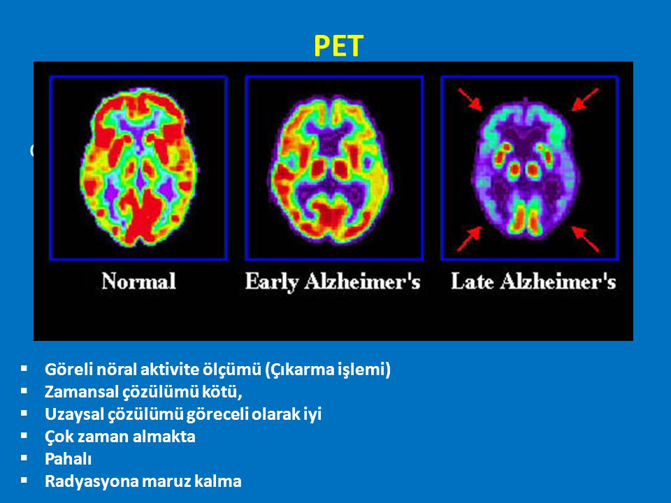 PET df Göreli nöral aktivite ölçümü (Çıkarma işlemi)