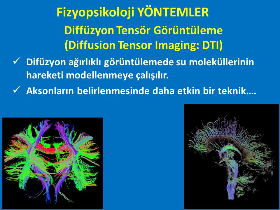 Diffüzyon Tensör Görüntüleme (Diffusion Tensor Imaging: DTI)