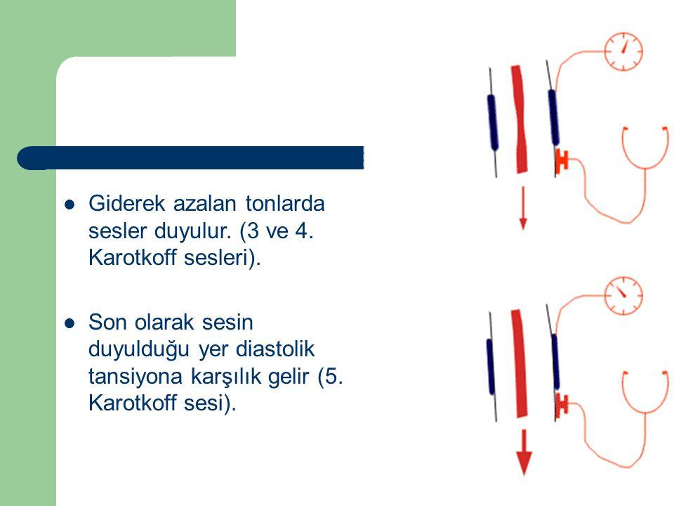 Giderek azalan tonlarda sesler duyulur. (3 ve 4. Karotkoff sesleri).