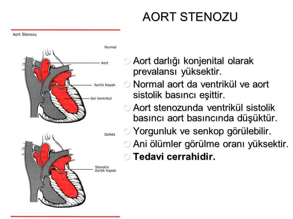 AORT STENOZU Aort darlığı konjenital olarak prevalansı yüksektir.