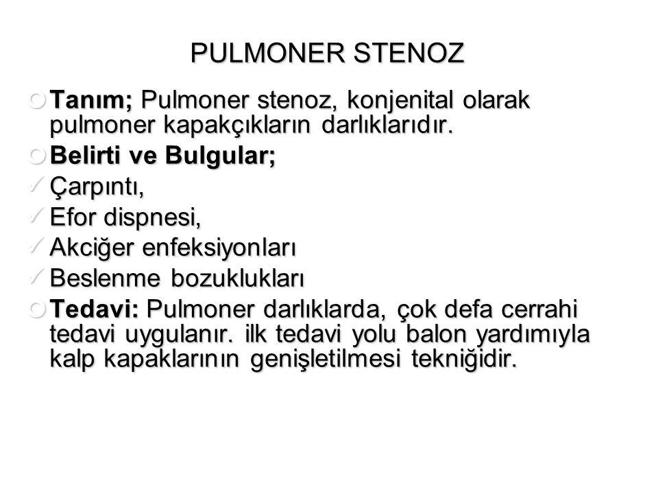PULMONER STENOZ Tanım; Pulmoner stenoz, konjenital olarak pulmoner kapakçıkların darlıklarıdır. Belirti ve Bulgular;