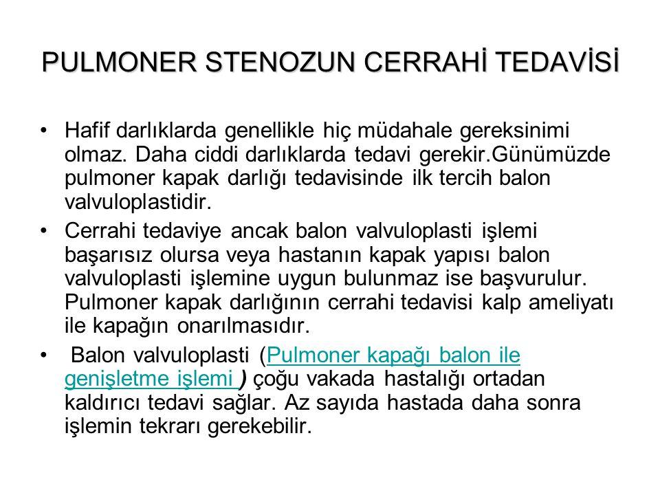 PULMONER STENOZUN CERRAHİ TEDAVİSİ