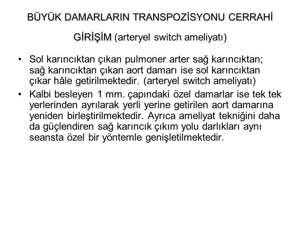 BÜYÜK DAMARLARIN TRANSPOZİSYONU CERRAHİ GİRİŞİM (arteryel switch ameliyatı)