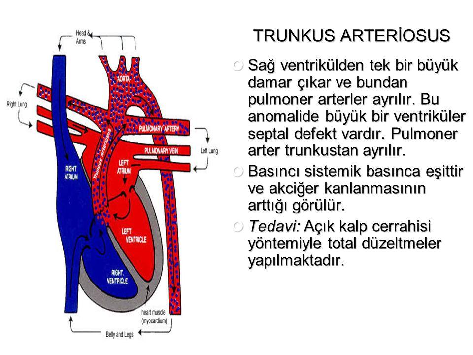 TRUNKUS ARTERİOSUS