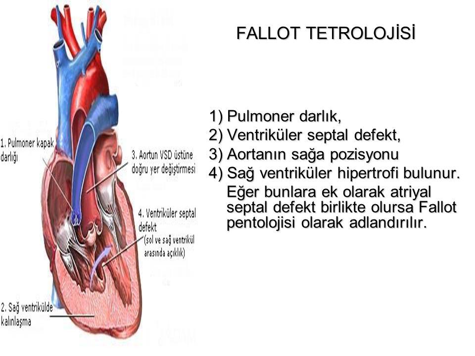 FALLOT TETROLOJİSİ 1) Pulmoner darlık, 2) Ventriküler septal defekt,