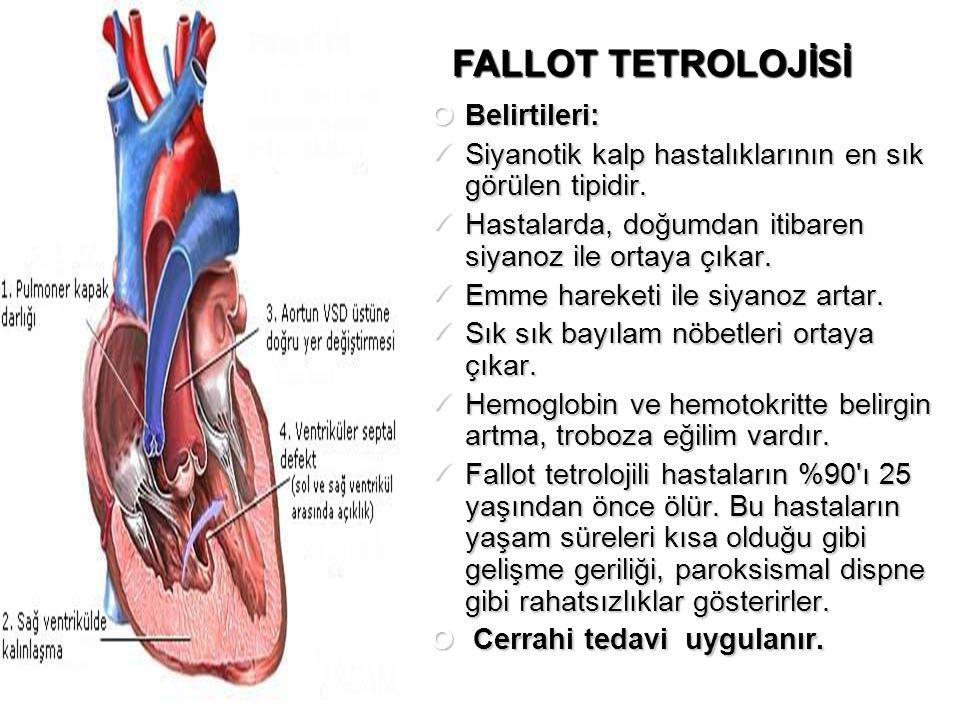 FALLOT TETROLOJİSİ Belirtileri: