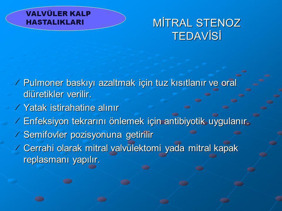 MİTRAL STENOZ TEDAVİSİ