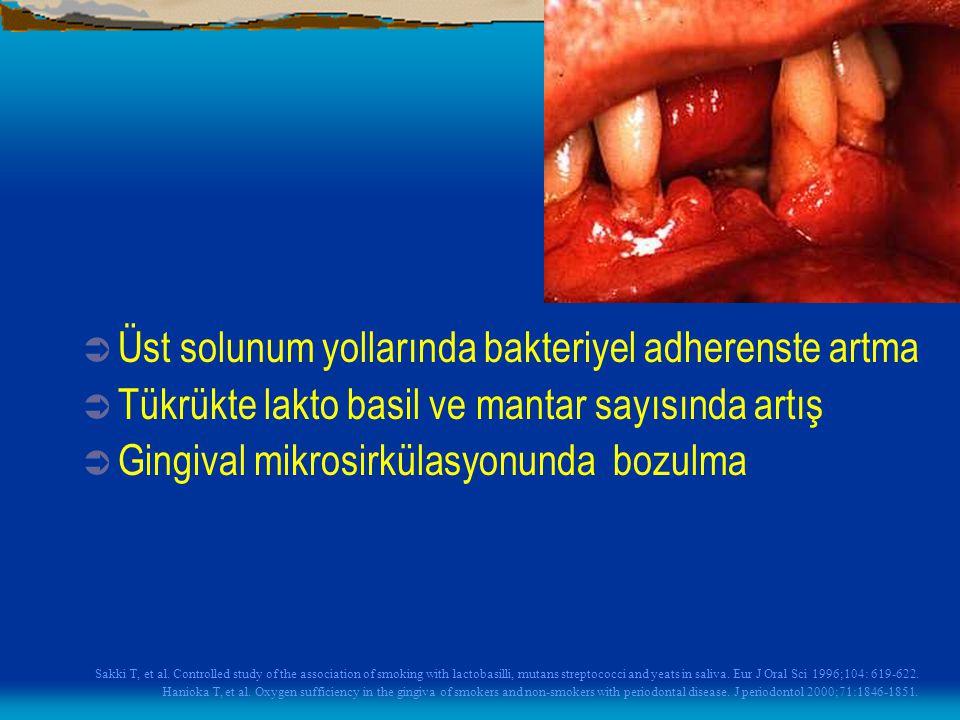 Üst solunum yollarında bakteriyel adherenste artma