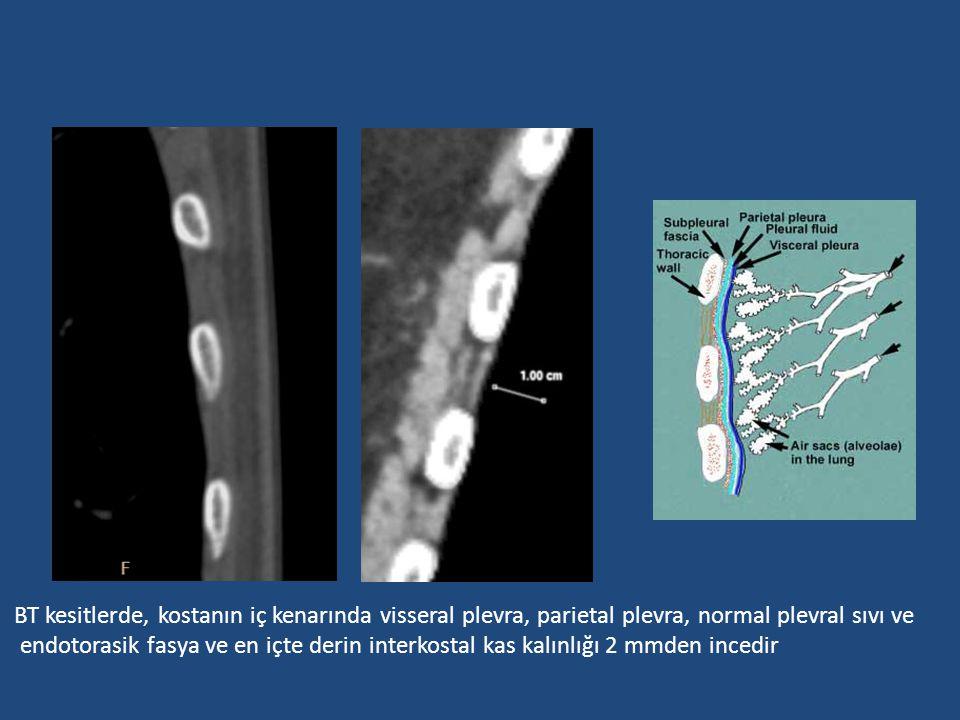 BT kesitlerde, kostanın iç kenarında visseral plevra, parietal plevra, normal plevral sıvı ve