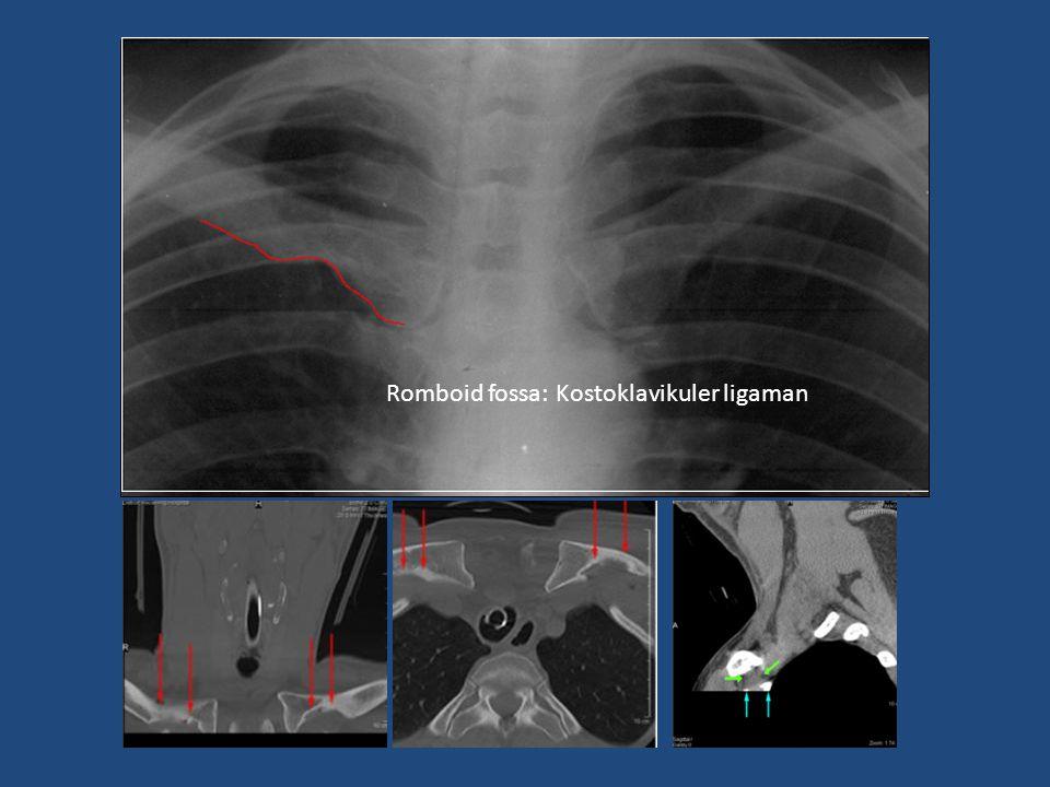 Romboid fossa: Kostoklavikuler ligaman