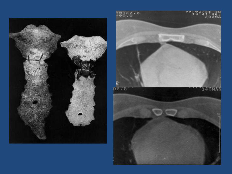 Midline sternal foramina