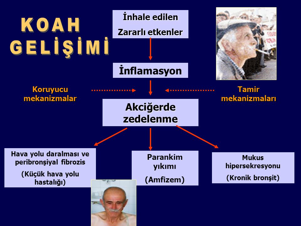 KOAH GELİŞİMİ İnflamasyon Akciğerde zedelenme İnhale edilen