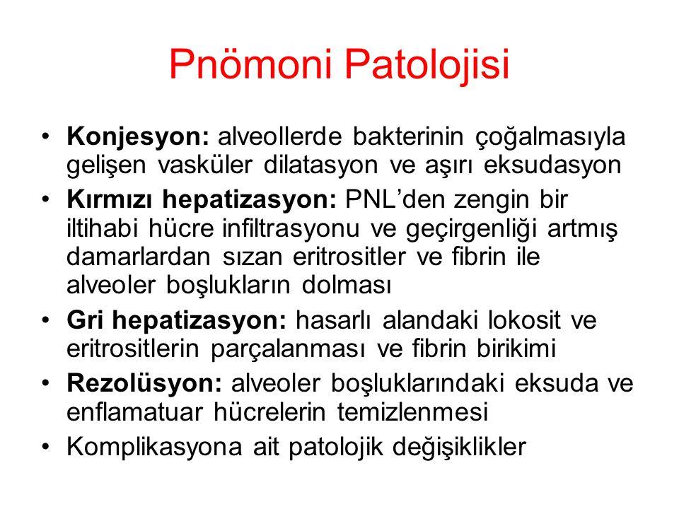 Pnömoni Patolojisi Konjesyon: alveollerde bakterinin çoğalmasıyla gelişen vasküler dilatasyon ve aşırı eksudasyon.