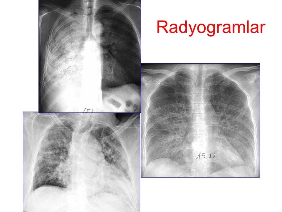 Radyogramlar