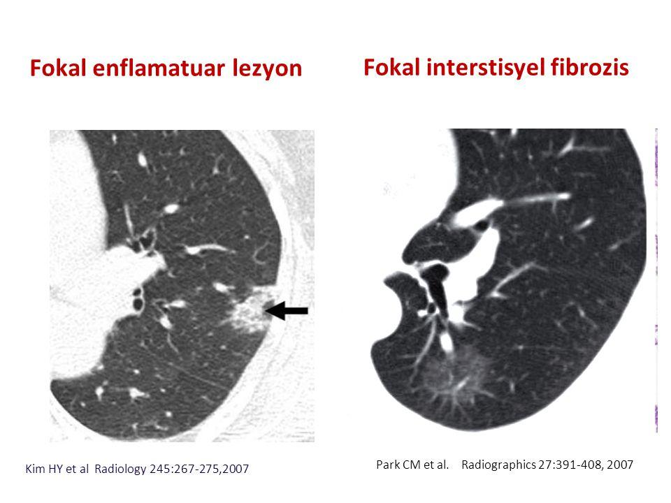 Fokal interstisyel fibrozis
