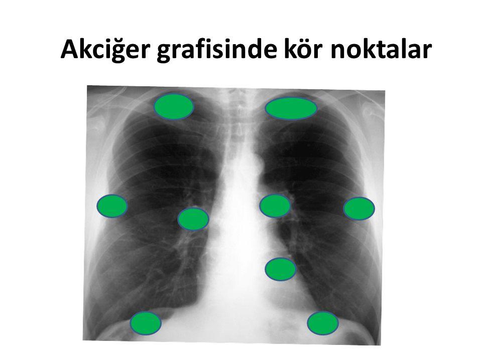 Akciğer grafisinde kör noktalar