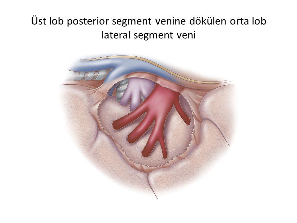 Üst lob posterior segment venine dökülen orta lob lateral segment veni