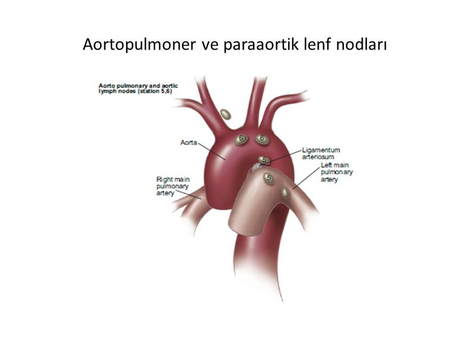 Aortopulmoner ve paraaortik lenf nodları