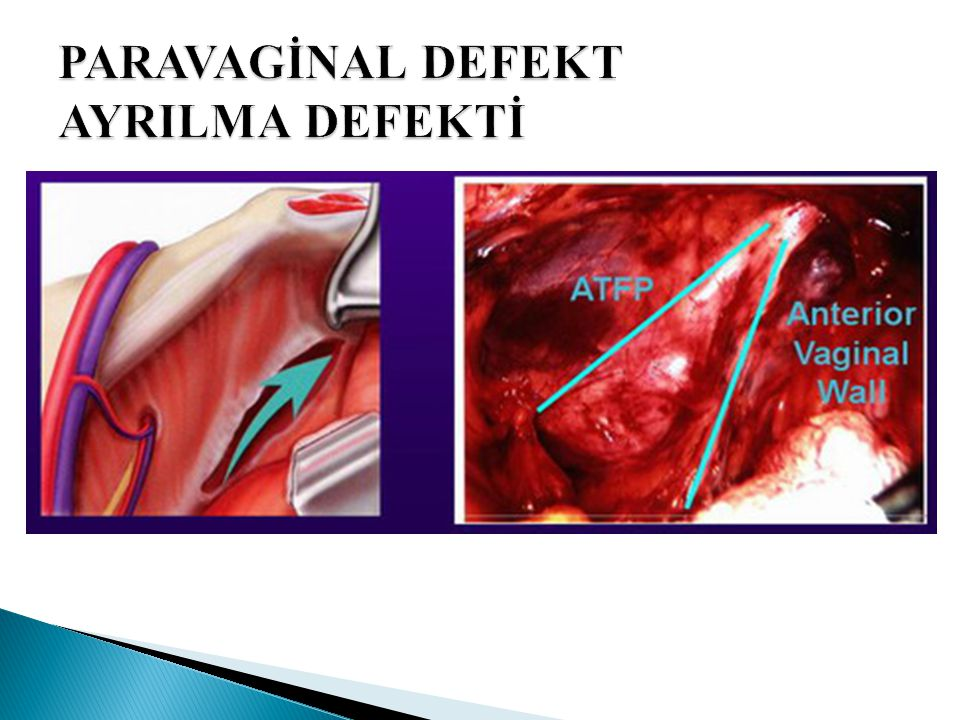 PARAVAGİNAL DEFEKT AYRILMA DEFEKTİ
