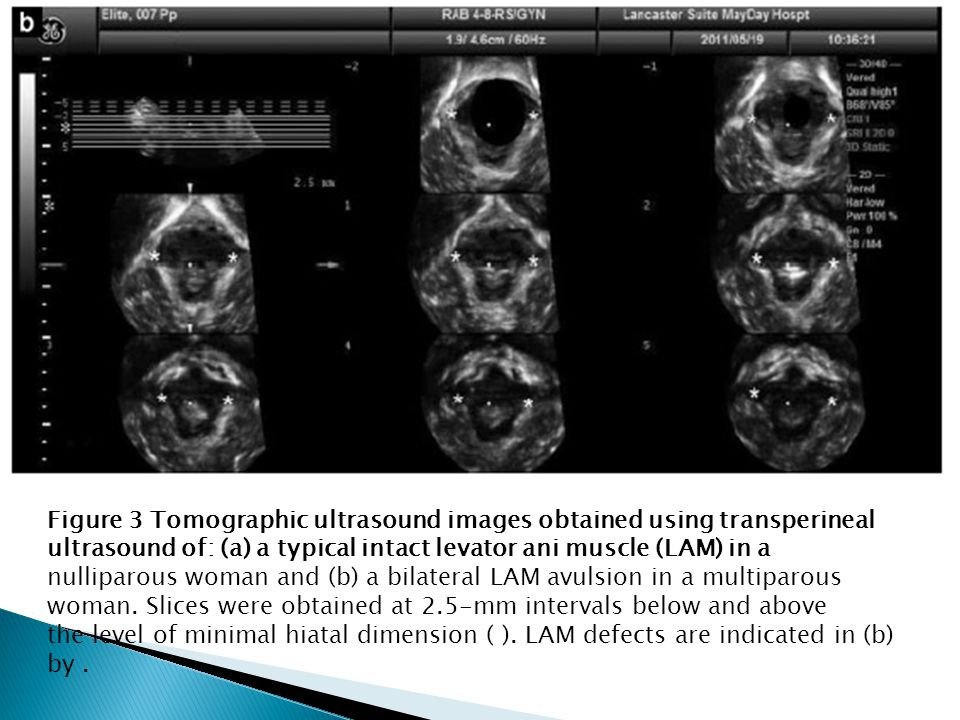 Figure 3 Tomographic ultrasound images obtained using transperineal ultrasound of: (a) a typical intact levator ani muscle (LAM) in a