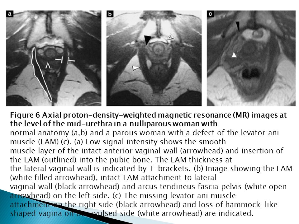 Figure 6 Axial proton-density-weighted magnetic resonance (MR) images at the level of the mid-urethra in a nulliparous woman with