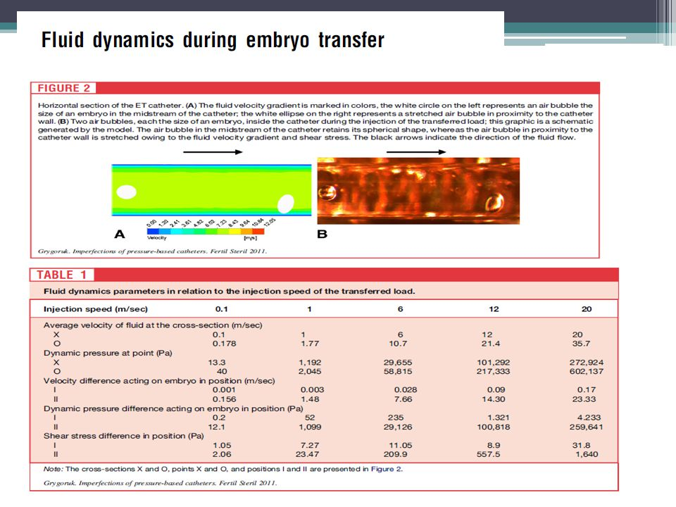Result(s): An increase of injection speed for the transferred load increased the shear stress, dynamic pressure, and velocity differences acting on the embryo. The narrowing of the catheter lumen diameter by 20% amplified the transferred fluid velocity by 78%. An embryo positioned in proximity to the catheter's wall was exposed to considerably higher shear stress, dynamic pressure, and velocity difference than an embryo in the center of the catheter's