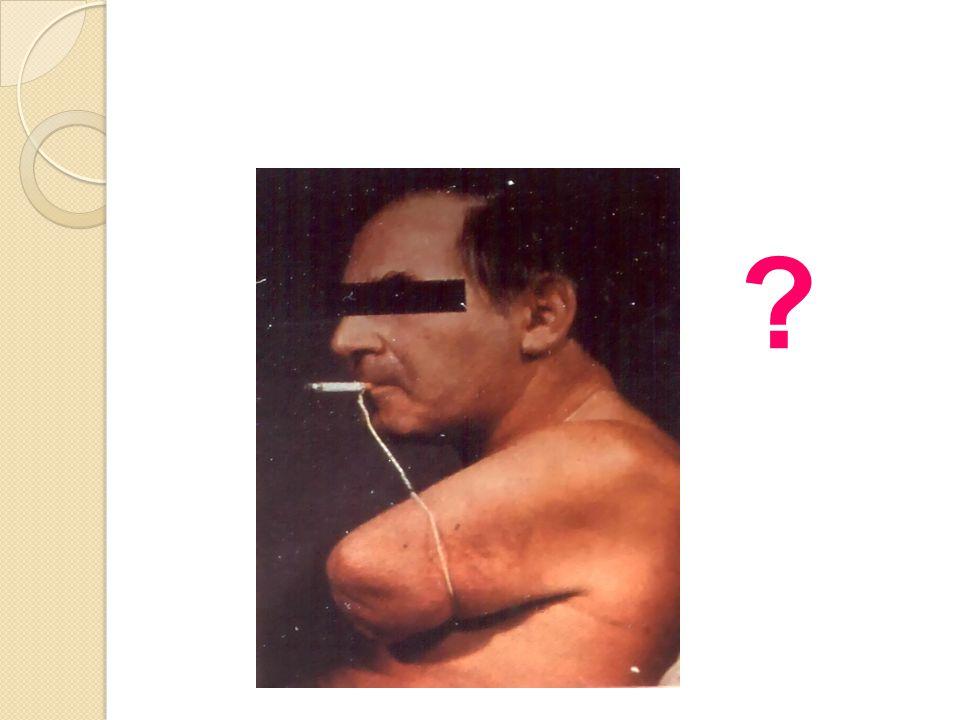 Sigara periferik arter hastalıgı riskini 16 kat arttırır. Amputasyona yol açabilir.
