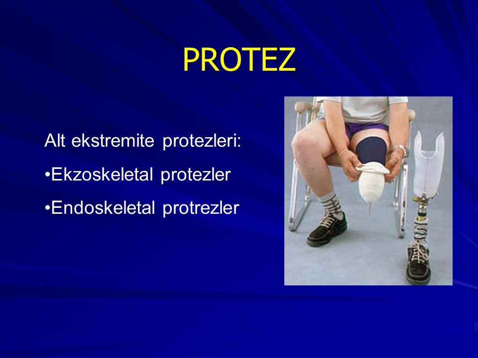 PROTEZ Alt ekstremite protezleri: Ekzoskeletal protezler