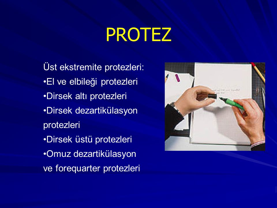 PROTEZ Üst ekstremite protezleri: El ve elbileği protezleri