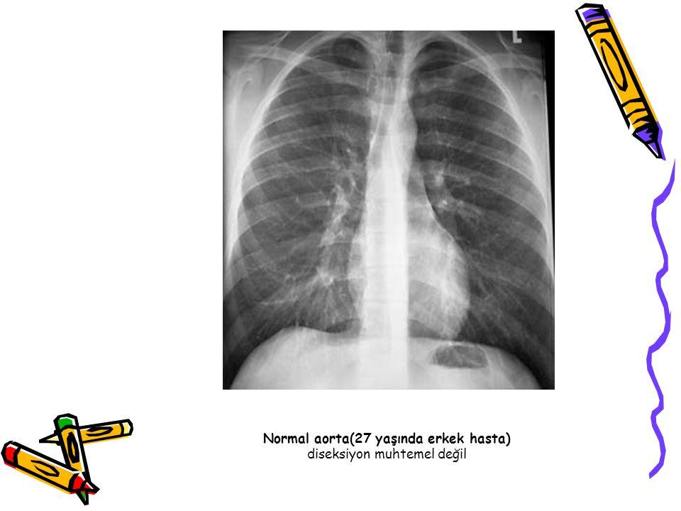 Normal aorta(27 yaşında erkek hasta) diseksiyon muhtemel değil