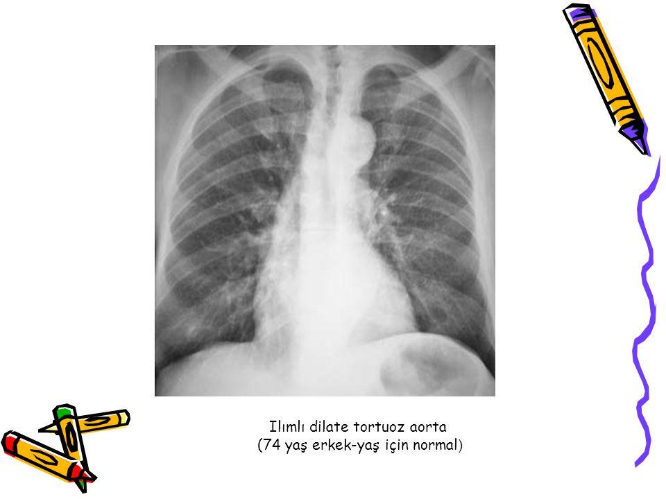 Ilımlı dilate tortuoz aorta (74 yaş erkek-yaş için normal)
