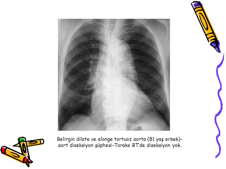 Belirgin dilate ve elonge tortuoz aorta (81 yaş erkek)-aort diseksiyon şüphesi-Toraks BT'de diseksiyon yok.
