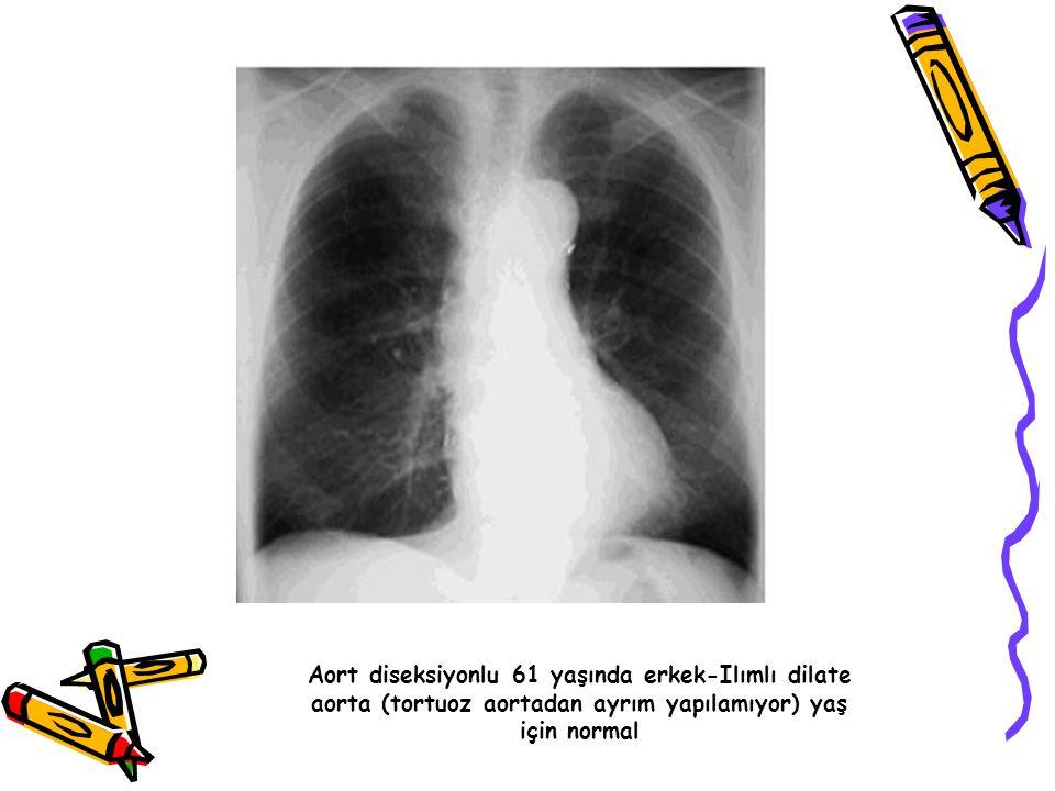 Aort diseksiyonlu 61 yaşında erkek-Ilımlı dilate aorta (tortuoz aortadan ayrım yapılamıyor) yaş için normal