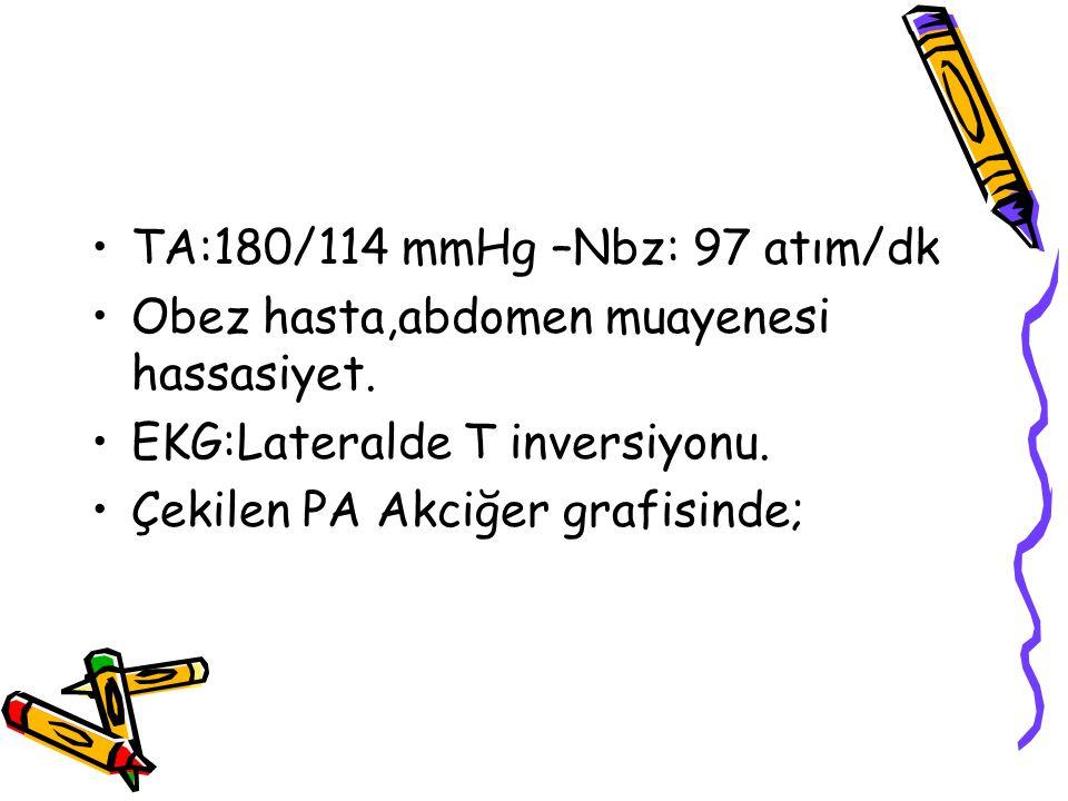 TA:180/114 mmHg –Nbz: 97 atım/dk