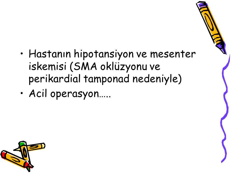 Hastanın hipotansiyon ve mesenter iskemisi (SMA oklüzyonu ve perikardial tamponad nedeniyle)