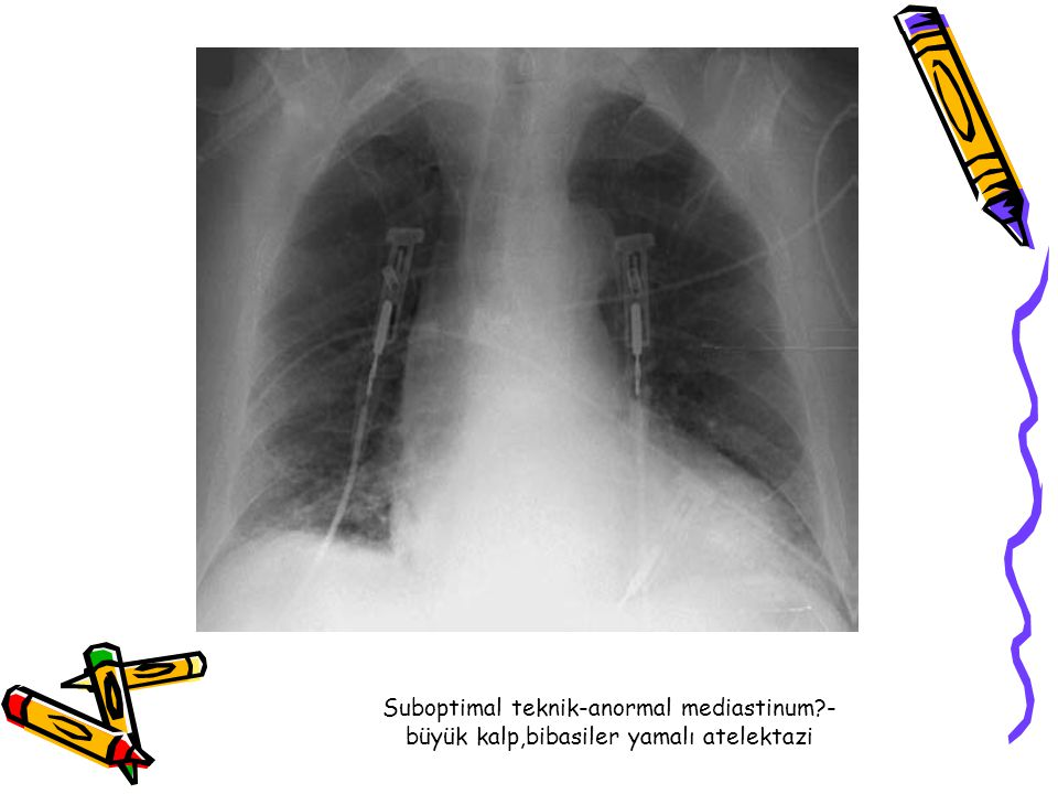 Suboptimal teknik-anormal mediastinum