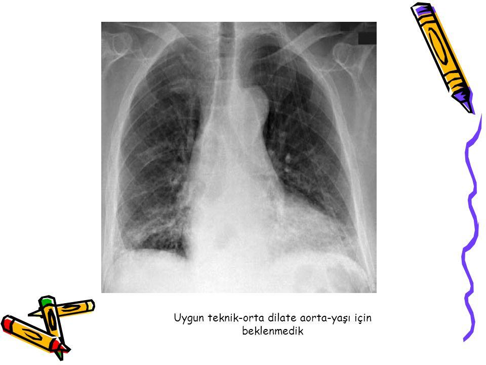 Uygun teknik-orta dilate aorta-yaşı için beklenmedik