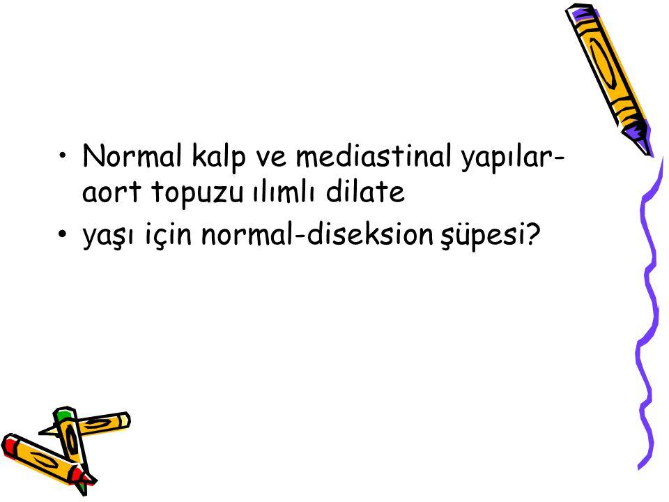 Normal kalp ve mediastinal yapılar-aort topuzu ılımlı dilate