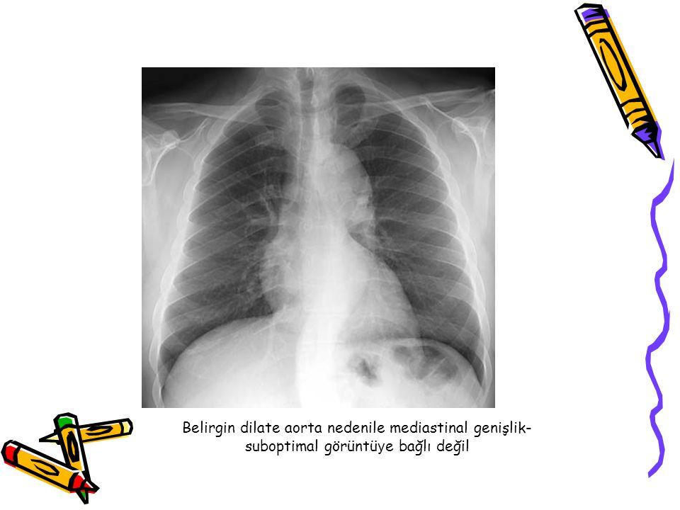 Belirgin dilate aorta nedenile mediastinal genişlik-suboptimal görüntüye bağlı değil