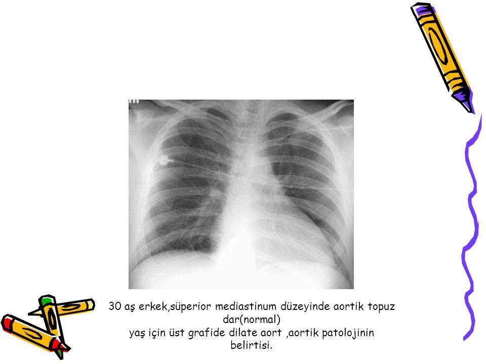 30 aş erkek,süperior mediastinum düzeyinde aortik topuz dar(normal) yaş için üst grafide dilate aort ,aortik patolojinin belirtisi.
