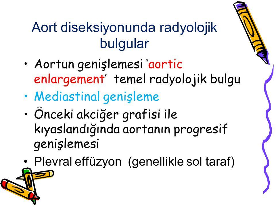 Aort diseksiyonunda radyolojik bulgular