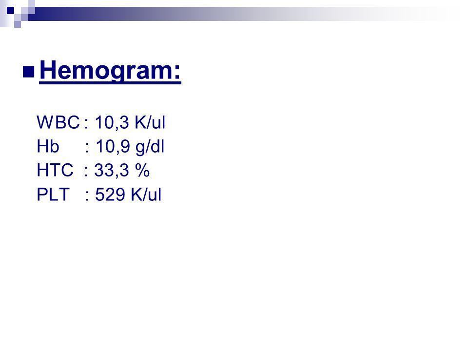 Hemogram: WBC : 10,3 K/ul Hb : 10,9 g/dl HTC : 33,3 % PLT : 529 K/ul
