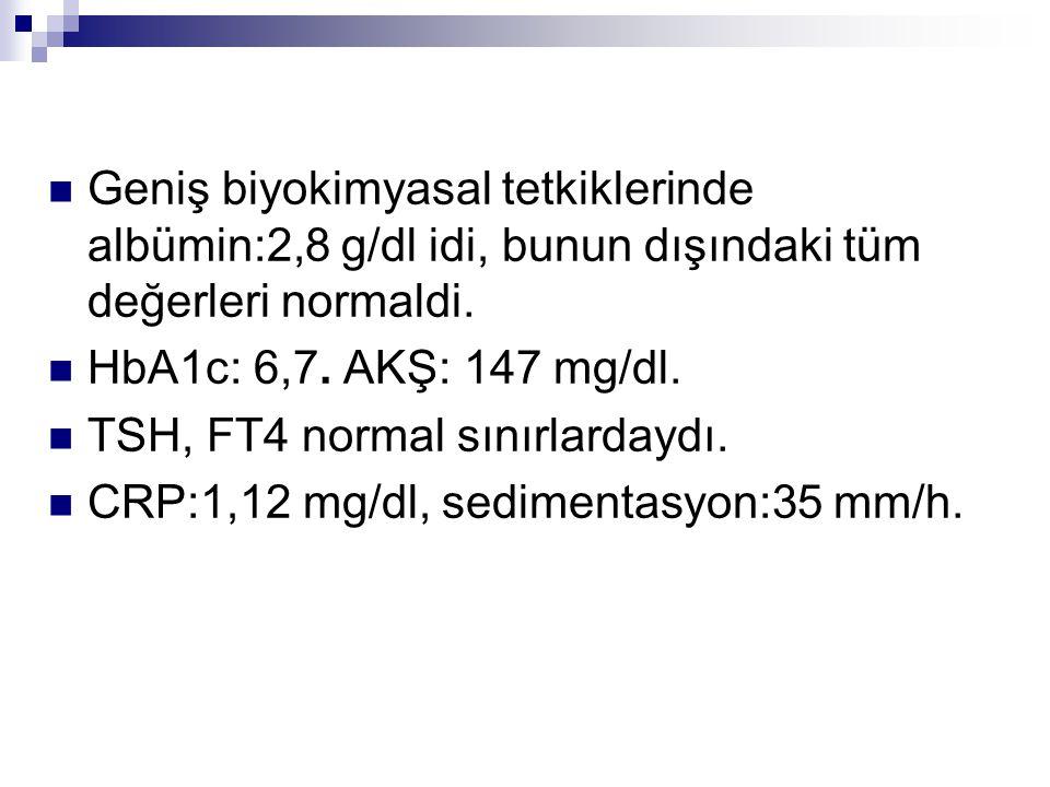 Geniş biyokimyasal tetkiklerinde albümin:2,8 g/dl idi, bunun dışındaki tüm değerleri normaldi.